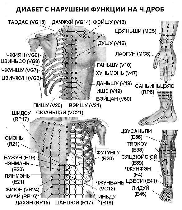 Артрит на колянната става - лечение
